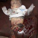 #السعوديه_تنتحر 524 يوما والمملكة ترتكب ابشع المجازر بحق #اطفال #اليمن هل سيتحرك ابناء المملكة قبل ان (ينفرط العقد) https://t.co/MX0AjpXcmj