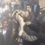 #اليمن طفل يمني بعد أن تم انتشاله من تحت الأنقاض.  يخاطب العالم الصامت هذامايحدث لأطفال اليمن. #مجزره_الصحن_صعده https://t.co/l60JfTnA08
