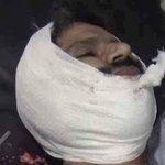 صنعاء : صور من الجريمة التي ارتكبها طيران العدوان السعودي الأمريكي على حي الروضة السكني يوم أمس 30_8_2016م https://t.co/izJnU9cUCb
