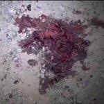#صنعاء : صور من الجريمة التي ارتكبها طيران العدوان السعودي الأمريكي على حي الروضة السكني يوم أمس 30_8_2016م https://t.co/diUQokRIRU