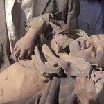 حتى وإن كان اسمك #عمران فلن يندبك هذا العالم المنافق لأنك من #اليمن ولأن قاتلك هوالنظام السعودي #نجران_الآن #عسير https://t.co/GvKjN4QCcf