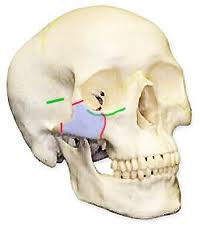 Facial tripod fracture - lateral orbit, zygoma, and maxilla. Requires surgical management. #EMConf https://t.co/4m2xMcN57q