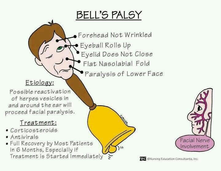 What is Bell's Palsy? https://t.co/Lxlv8R9HQw
