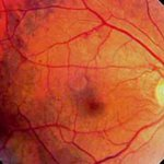 All about  diabetic retinopathy