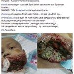 RT gais semoga ada yg dapat membantu baby ini....  kalau tak dapat bantu sedekahkan doa untuknya punjadi 🙏🙏🙏🙏🙏🙏🙏🙏🙏🙏  https://t.co/CTh8jgKiLm