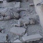 Kalk çoçuk Kalkta tükür, küçük mefaatleri için kan döken dünyanın suratına! #MassacrelnAleppo #Halep https://t.co/z1qR1LZa2x