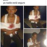 @AlvaroAlvaradoC entiendo que este es el señor del auto robado.... https://t.co/qt30y4ZVsM