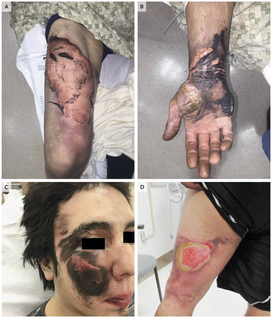 Injuries of the Face, Hands, and Thighs Caused by E-Cigarette Explosions https://t.co/FWnDNb76Ak #eCigs https://t.co/qE0GmBNTLf