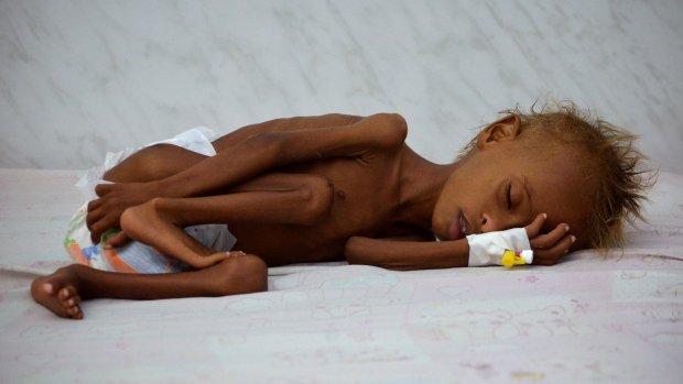 'No one is speaking for Yemen' as 370,000 malnourished children face risk of death Listen: https://t.co/UHA3fH5uZH https://t.co/wFHdZ9Yj3V