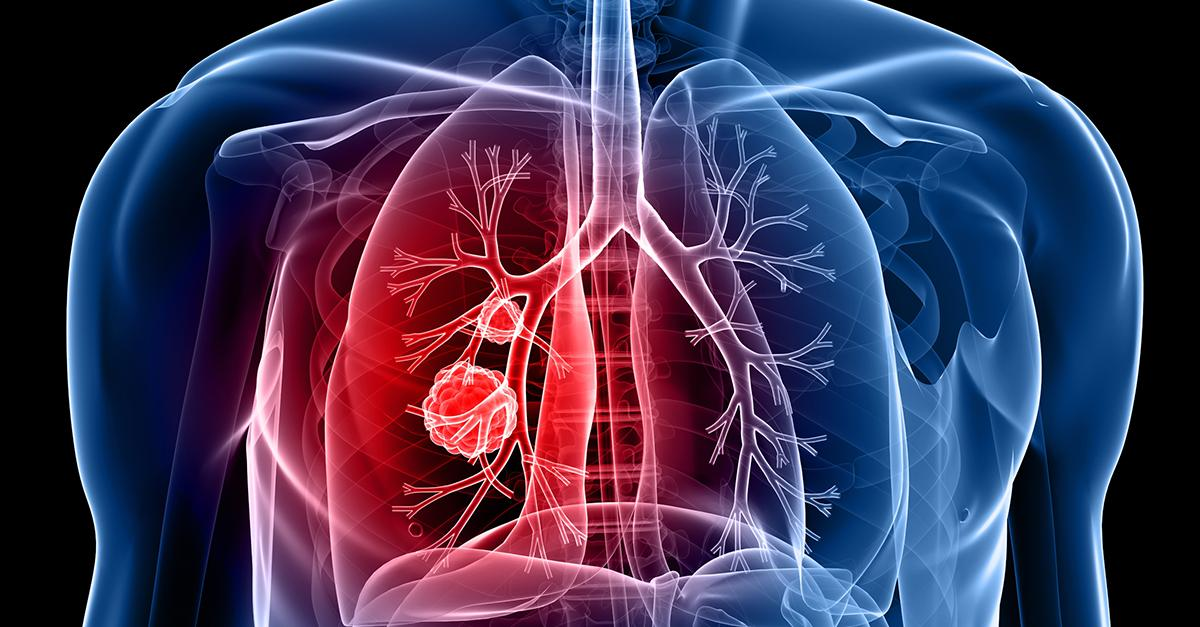 November is #LungCancerAwarenessMonth, don't allow fear to prevent a lung cancer screening: https://t.co/S7Adhb3OBQ https://t.co/kVb1oqwxM2