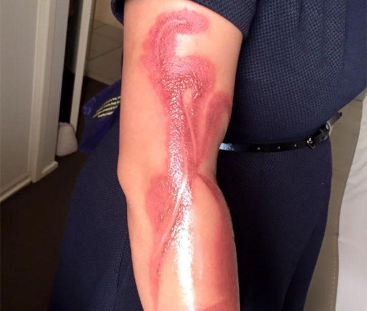 Australie: 🇦🇺Une mère de famille s'est brûlée au second degré, elle s'était assoupie avec son #iphone7 en charge sur le bras via @9NewsSyd