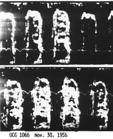 #ecocardiohistoria :Modo M del primer Mixoma -año 1956 del pionero I.Edler https://t.co/QNfcvwsxLs