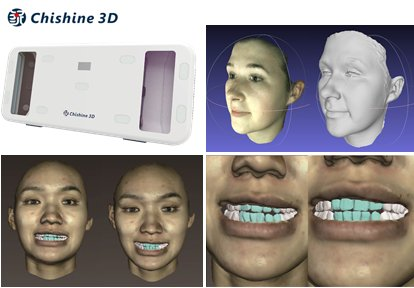 Chishine3D will present as premiere at the @3dbodyscanning conference & expo: 3D Face Scanner & 3D DSD (Digital Smile Design), 30Nov.-1Dec. https://t.co/0opgKbLrNe