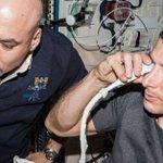 Astronaut eye problems blamed on spinal fluid