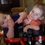 Conjoined twins who faced each other separated in California surgery