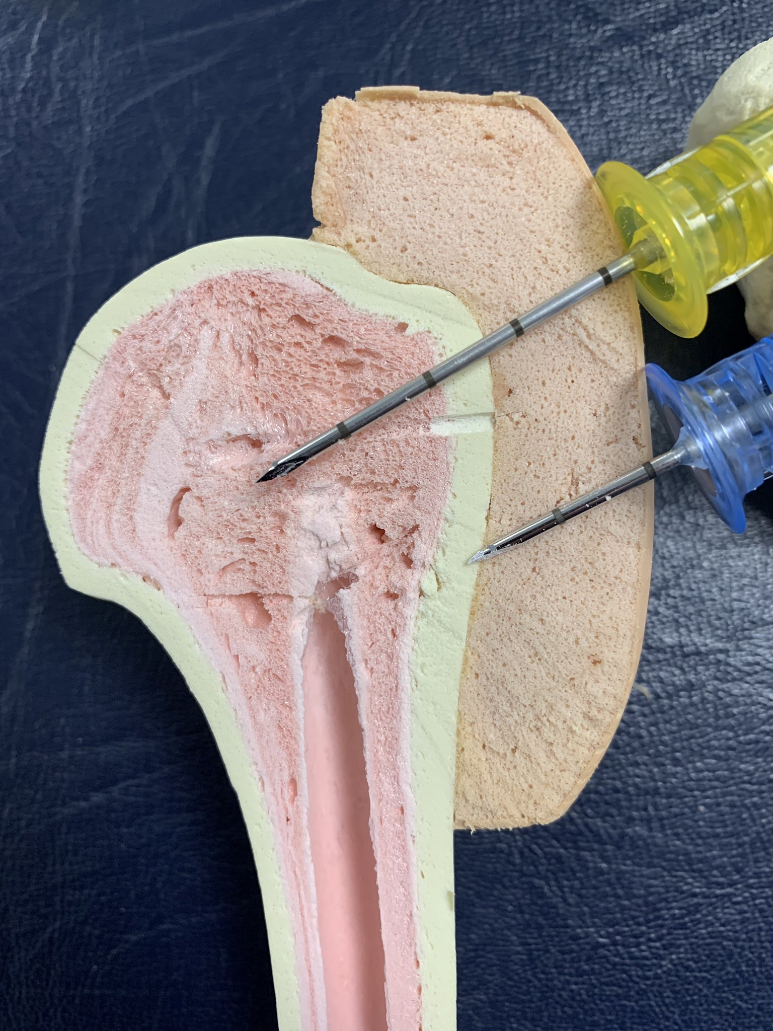 That's why you use the yellow needle  in  Proximal Humerus https://t.co/BMnnxzA7wY