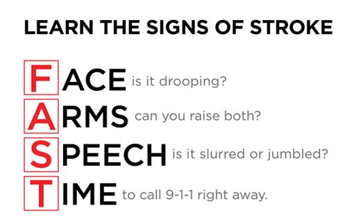 Luke Perry was just 52 and gone way too soon. Please take a moment to note the signs of a stroke. https://t.co/YMRB3PKlm9