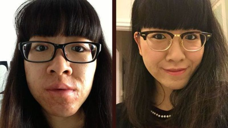 Acne sufferers share inspirational recovery stories that anyone can