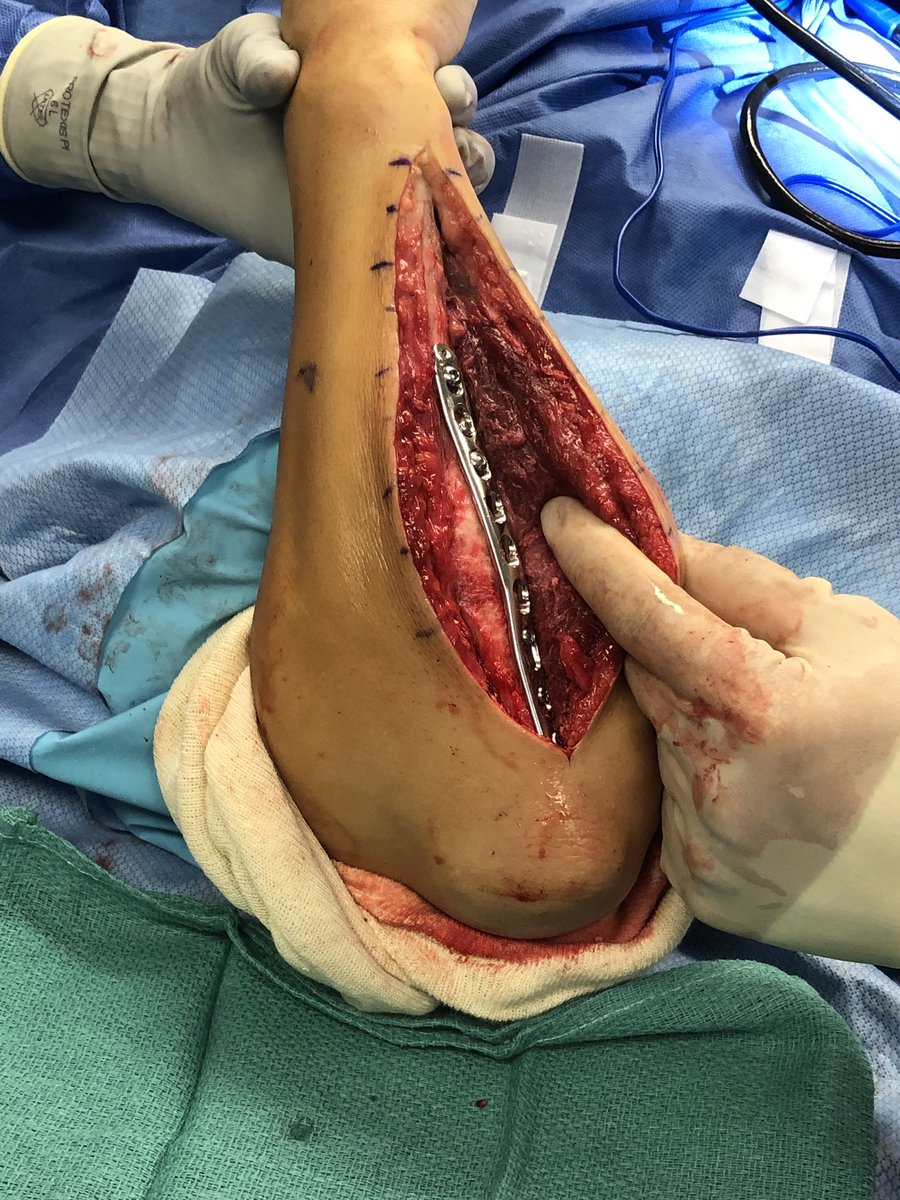 ⚠️WARNING GRAPHIC CONTENT⚠️ Chop chop!! All this and still itching for more???? #UFC #surgery #pvzstrong https://t.co/F9gpQ9trqq