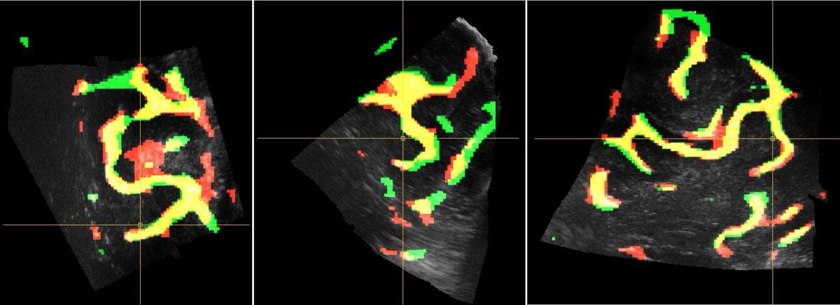 "test Twitter Media - ""Segmentation-based registration of #ultrasound volumes"": Visit our talk today at #CARS2019Rennes, 17:00 in room Le Réfectoire. https://t.co/AgGviZJoHe @TRABIT_ITN #neuronavigation #DeepLearning #AI #imageregistration #whatsnext https://t.co/cjrlQZoERI"