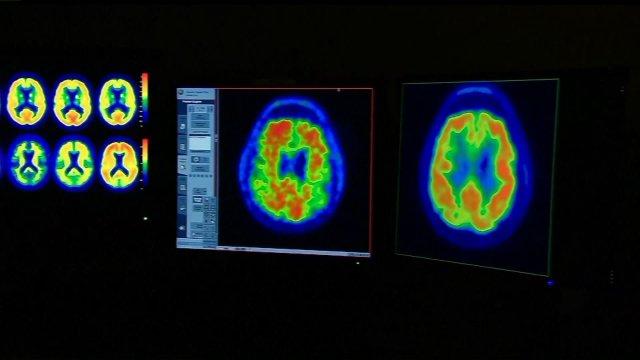 New Dementia Drug May Help PreventDisease
