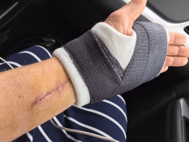 A shot of my new cast, also see the scar from the last surgery https://t.co/QLjtEjLjKY