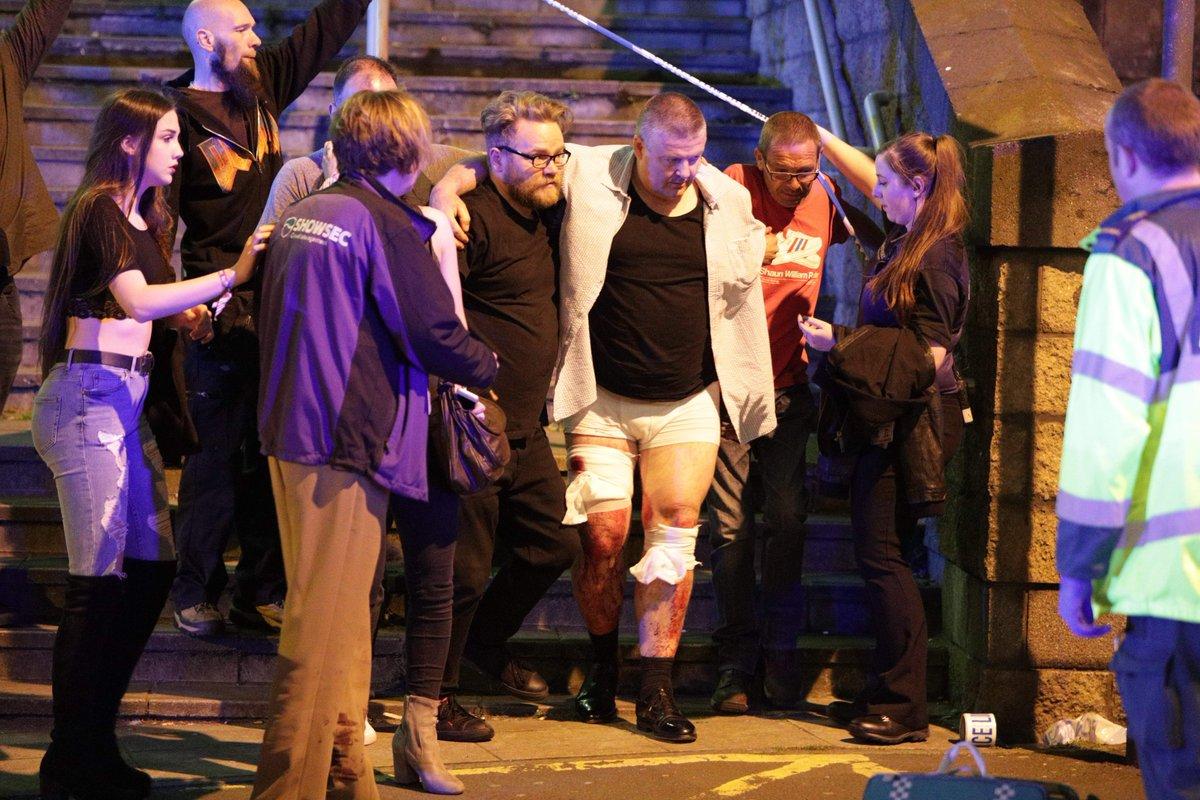 Resultado de imagem para atentado de manchester