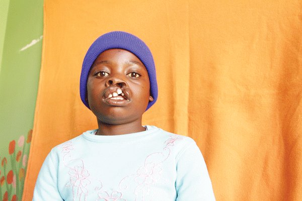 Cleft lip operations bring hope for Zimbabweans