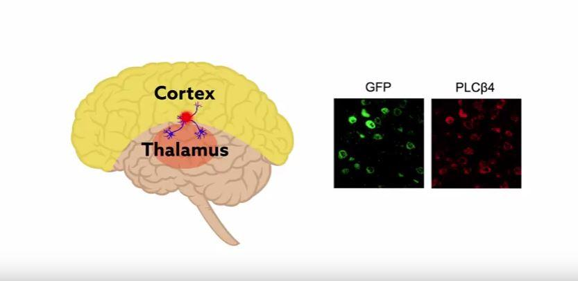 test Twitter Media - Watch the video - researchers identify a brain circuit that controls sleep stage transitions:  https://t.co/MdhS8QHUaV https://t.co/rFdeiQt128