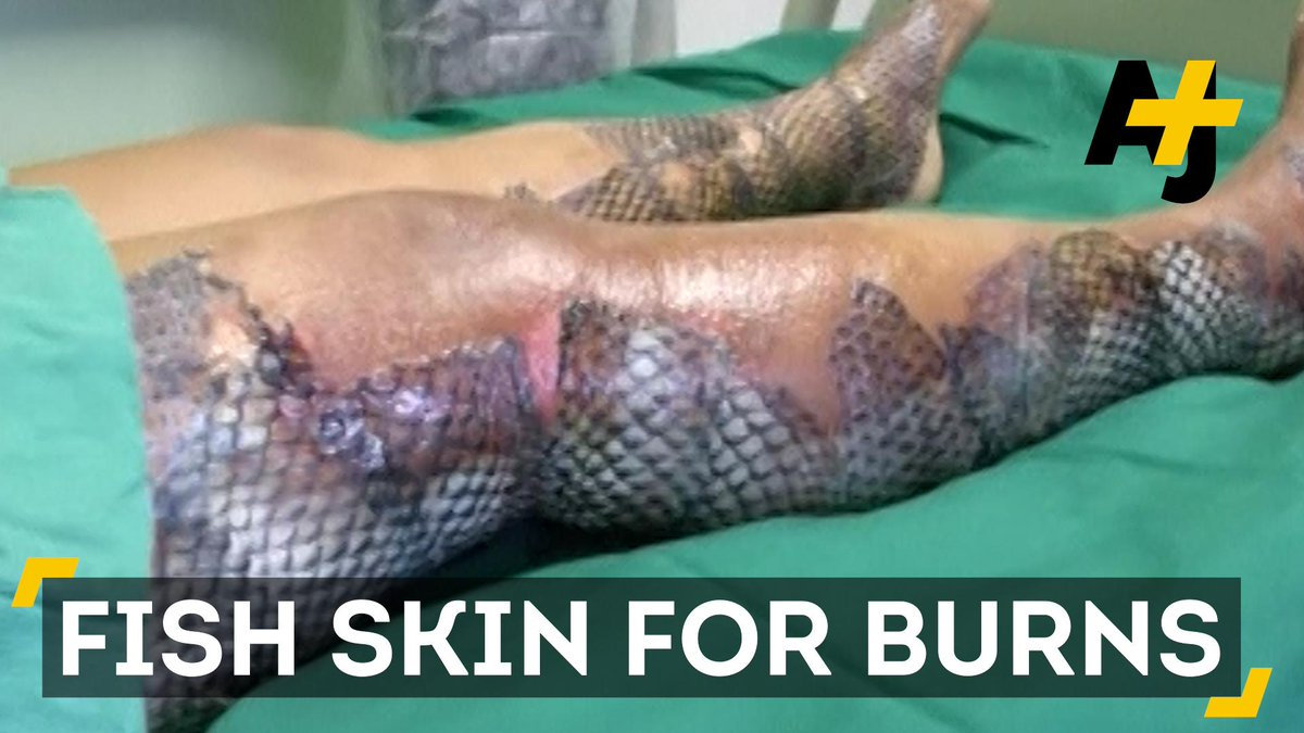 Turns out fish skin is good for healing burns for Fish skin for burns