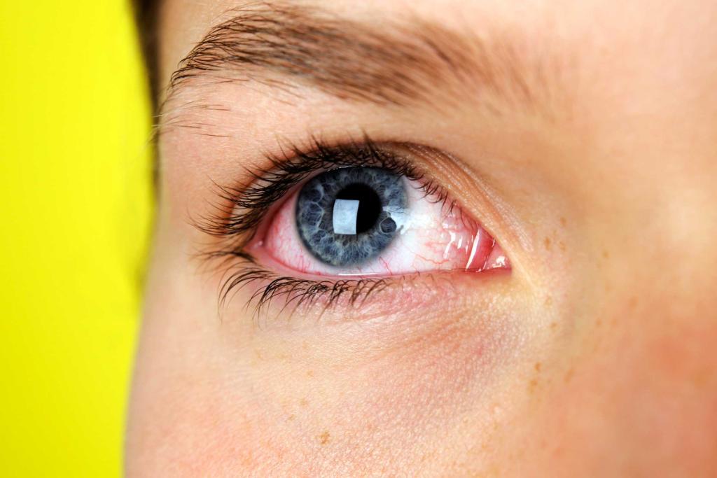 Как в домашних условиях убрать покраснение глаз в