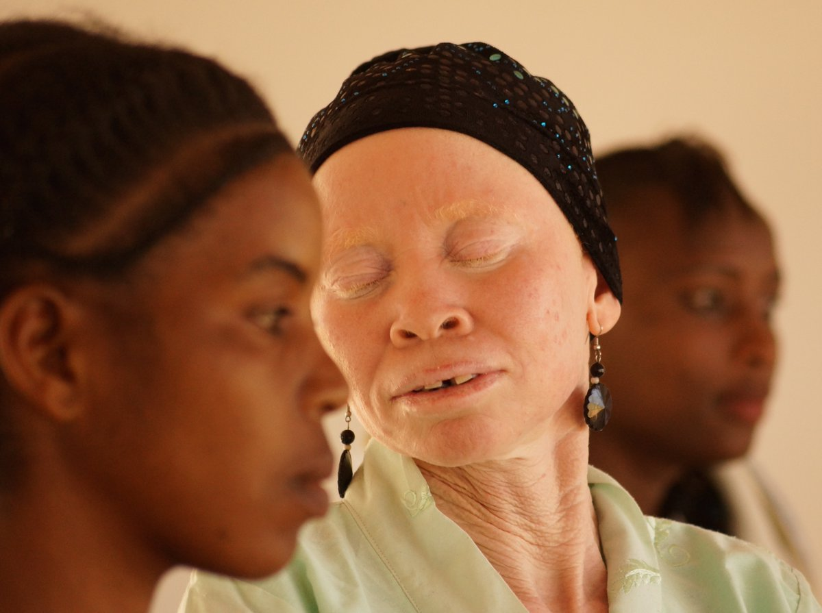 Tanzania's albinos are fighting violence and discrimination, with music