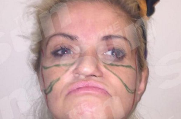 Danniella Westbrook admits she's 'terrified' ahead of face lift surgery in Poland