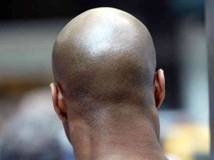 Bald Mozambique men could be targets of ritual killings, police warn