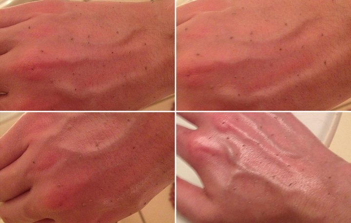The Crazy Blackhead-Removing Trick People On Reddit Are Obsessed With