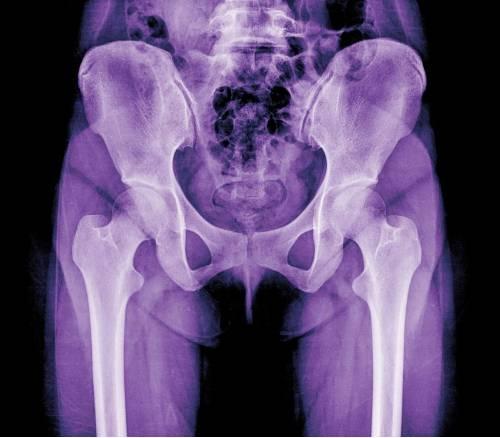 test Twitter Media - El diagnóstico precoz puede evitar prótesis de cadera. https://t.co/Q9jPJVuYUB Vía: @quironsalud https://t.co/43hdJNVFcV