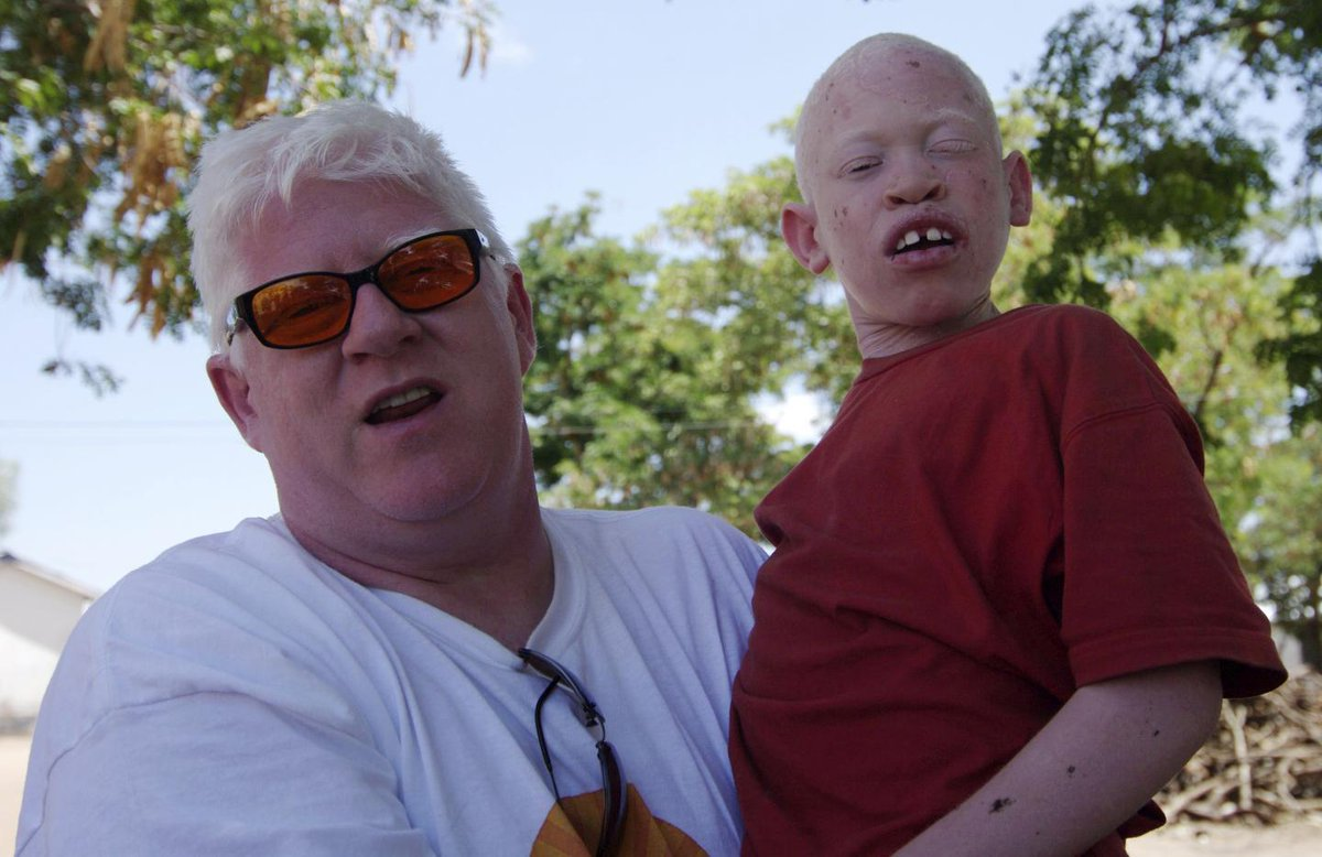 Albinos face deadly persecution in Africa. This has to stop | Opinion