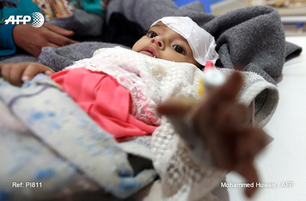 Yemen cholera toll nears 1,000 as 'humanity loses out to politics'