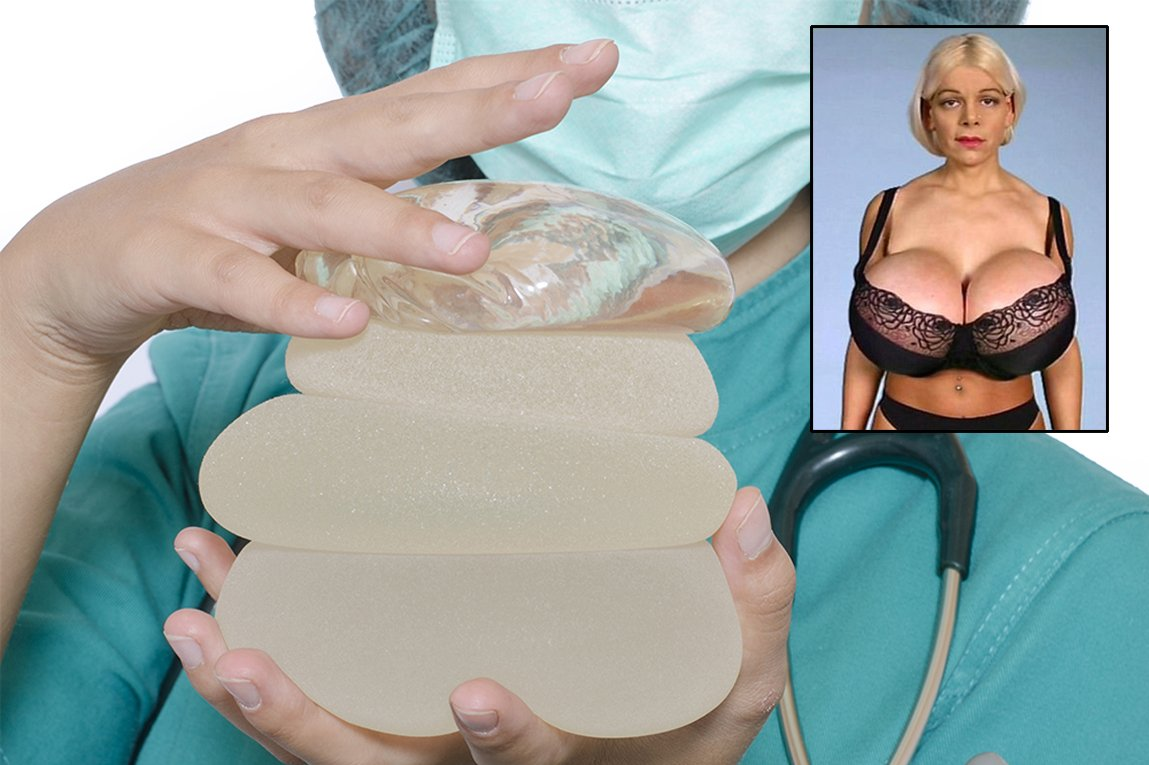 breast implants Looking for consumer information breastimplantsbymentorcom complete source of information on breast augmentation, facial rejuvenation, and body contouring.