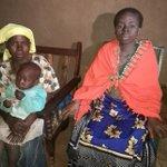 Rare skin disease leaves Kisumu woman in pain, deforms body