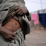 Wealth, poverty propping up Pakistan's illegal kidney trade