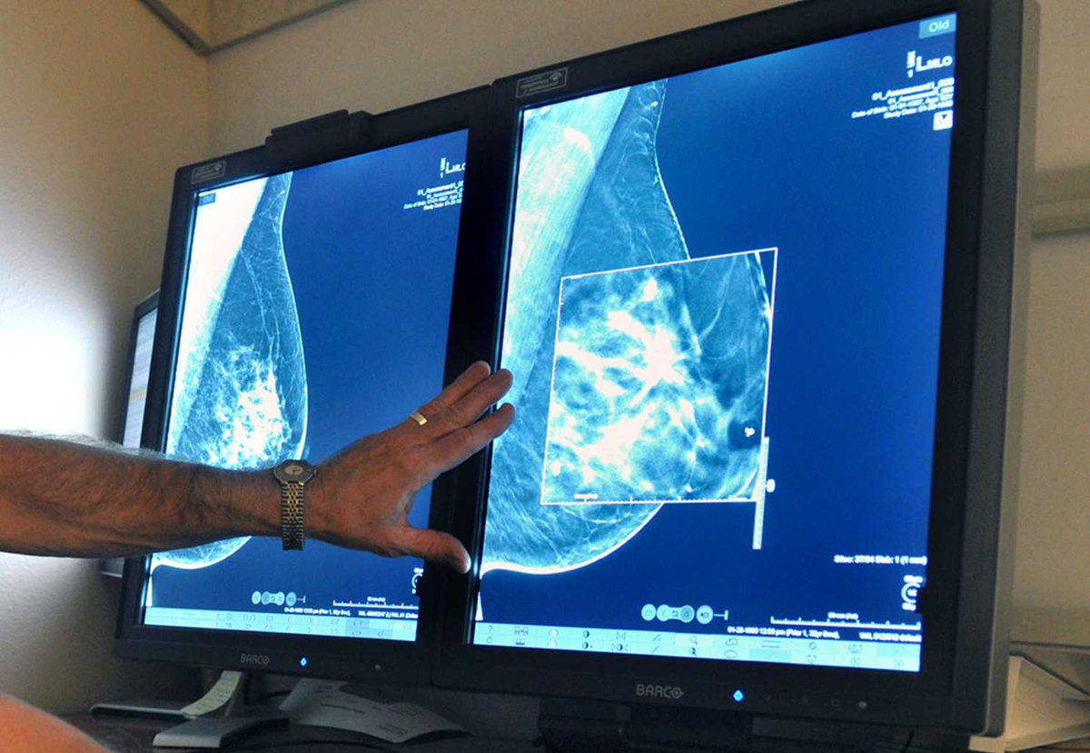 Women with #advancedbreastcancer are surviving longer, study says https://t.co/X7IRuN54Gq https://t.co/xV5MGQtjSP