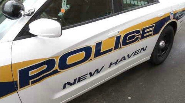 Moped driver seriously injured after New Haven crash
