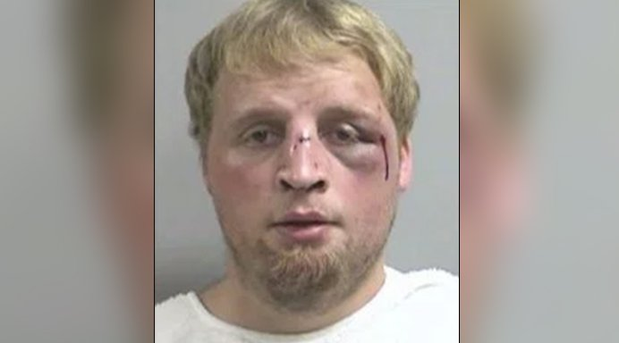 Babysitter accused of molesting 1-year-old is beaten by child's dad before arrest