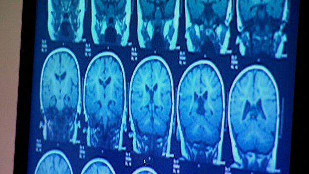 Canadian government releases guideline on concussions in sport