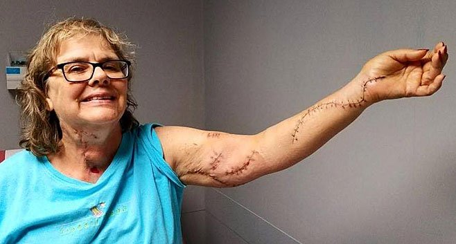 Southbridge Nurse Hurt In Stabbing Attack Shares Photo Of Her Recovery