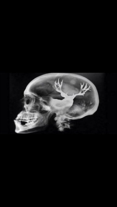 Had to go get a CAT scan the other day.. https://t.co/8WjWaRC8mp