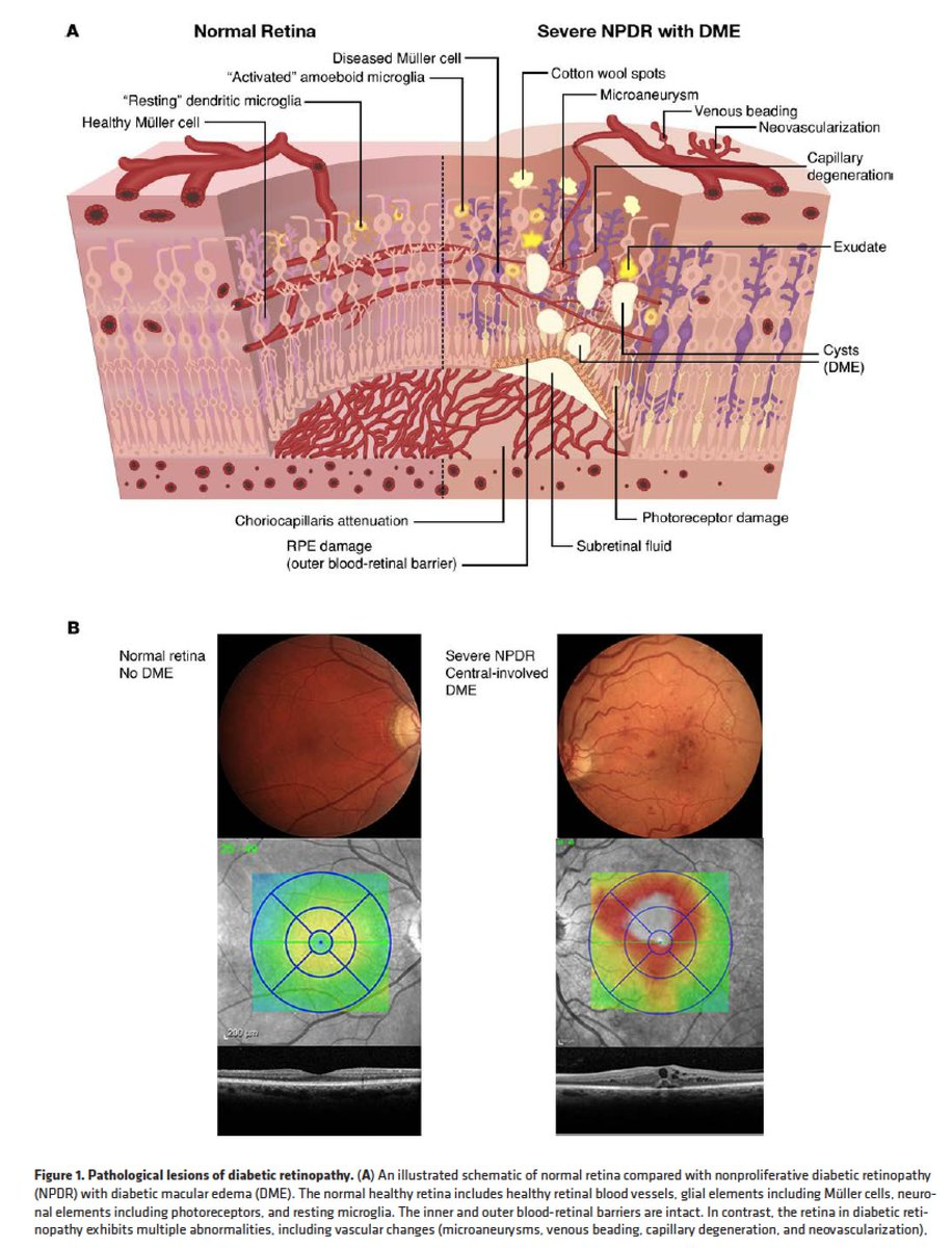test Twitter Media - It affects 100 M people WW, but under-diagnosed/treated: excellent review of #diabetes retinopathy #OA https://t.co/F9R1ESvLHL @JCI_insight https://t.co/Bv0rmLvIP1
