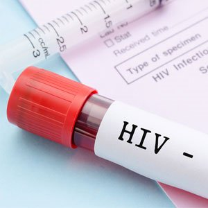 Women with HIV in Cameroon still stigmatised