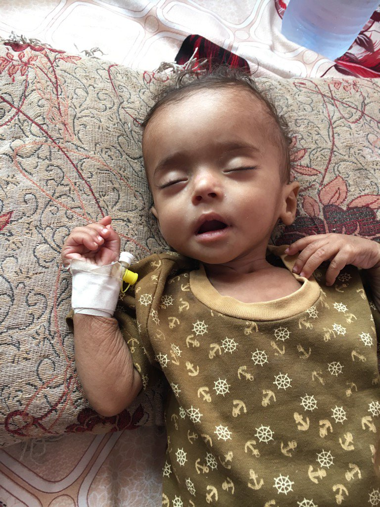 RT @OrlaGuerin: Doctors told us #Yemen in danger of loosing its future. 500,000 children now severely malnourished https://t.co/3YrxbMmN5H